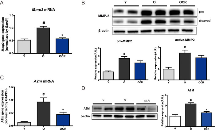 Alteration of MMP2 and A2M expression during aging and CR.