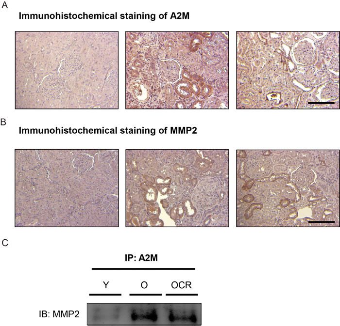 Effects of aging and CR on A2M-MMP2 interaction.