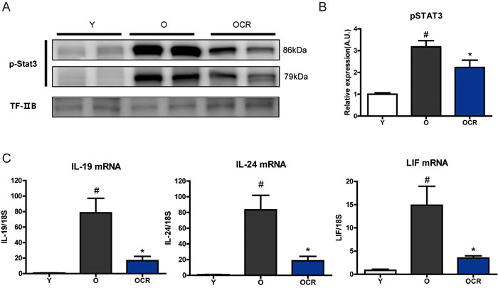 Effects of aging and CR on STAT3 activation and STAT3 inducing cytokines.