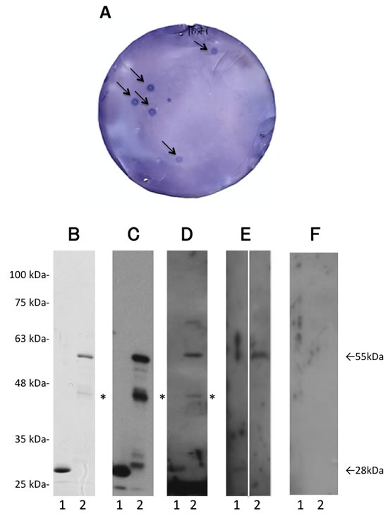 First screening by SEREX and Western blot analysis.