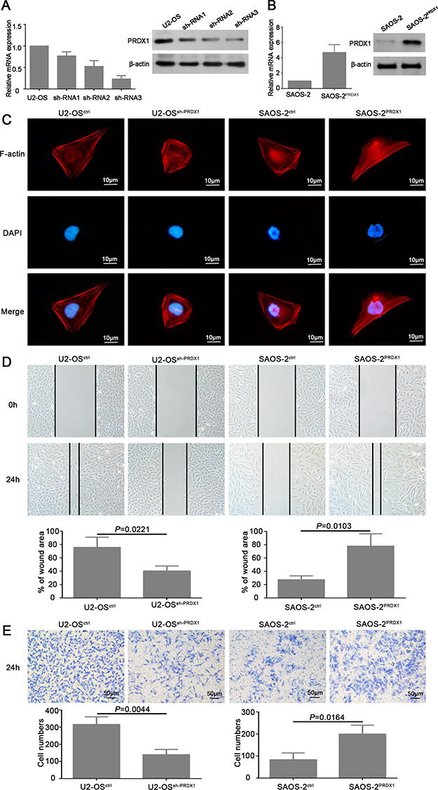 PRDX1 promotes migration and invasion of osteosarcoma cells in vitro.