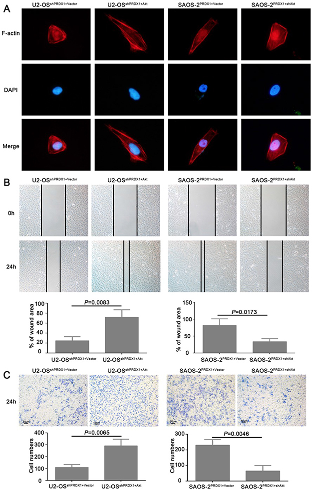 Akt is a critical downstream effector in PRDX1-promoted proliferation in osteosarcoma.