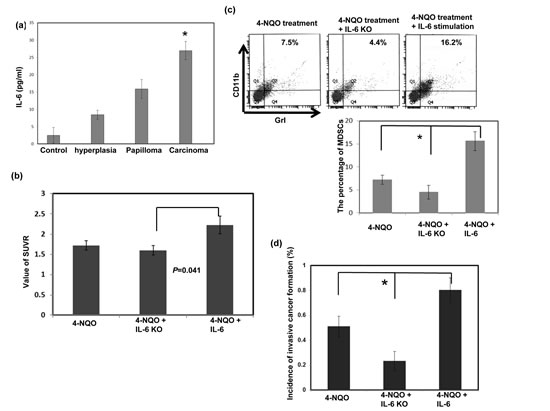 Effect of circulating IL-6 levels on tumor progression and MDSC accumulation