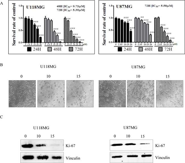 Cell cytotoxicity of NSC745887 upon treatment of U118MG and U87MG cells.