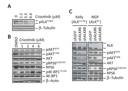 ALK inhibition does not affect mTORC1 signaling in