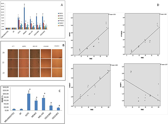 Gene expression analyses and migration ability evaluation in normal (fibroblasts and melanocytes) and melanoma cells.