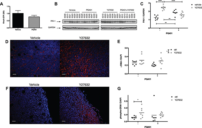 ROCK inhibition increases the recruitment of CAFs and PAI-1 expression in breast cancer xenografts.