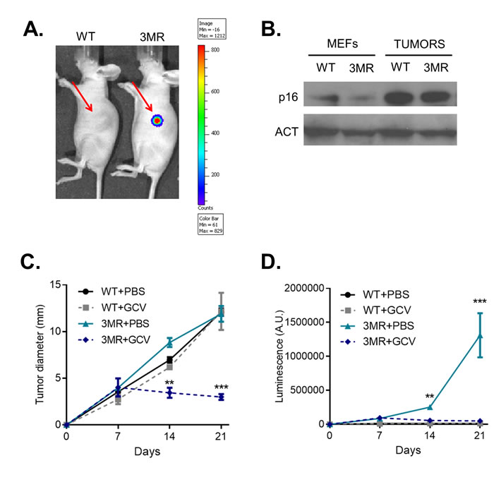 Oncotarget | A novel suicide gene therapy for the treatment
