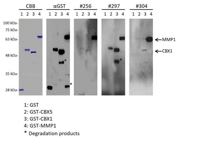 Oncotarget | Association of serum levels of antibodies against MMP1