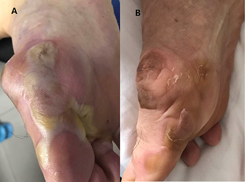 The grade 4 hand-foot syndrome.