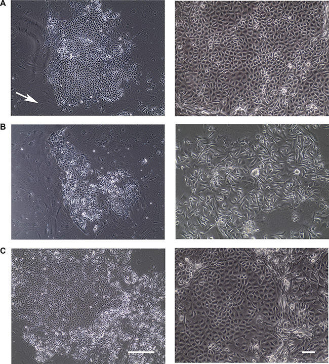 Colonies formed from normal human epithelial cells under conditional reprogramming condition.