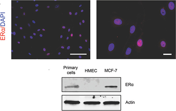 Expression of ERα in the cultured primary mammary epithelial cells.