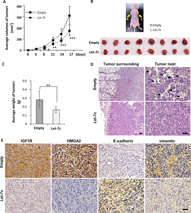Let-7c inhibits HNSCC tumor growth and infiltration.
