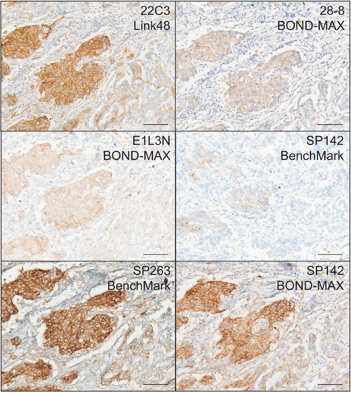 Representative IHC stains of PD-L1 in NSCLC using 22C3/Link48, 28-8/BOND-MAX, E1L3N/BOND-MAX, SP142/BenchMark, SP263/BenchMark, and SP142 BOND-MAX protocols.