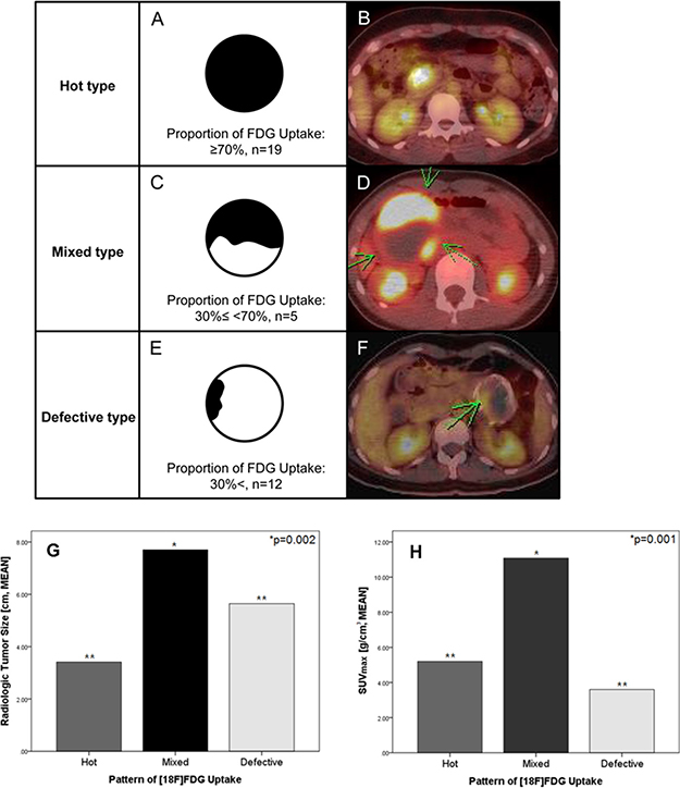 Clinical patterns of 18FDG-uptake in SPN of the pancreas.