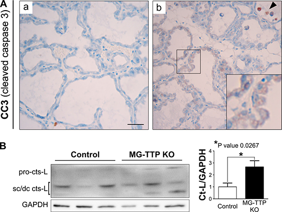 Cleaved caspase 3 (CC3) and active Cathepsin-L in MG-TTP KO lactating glands.