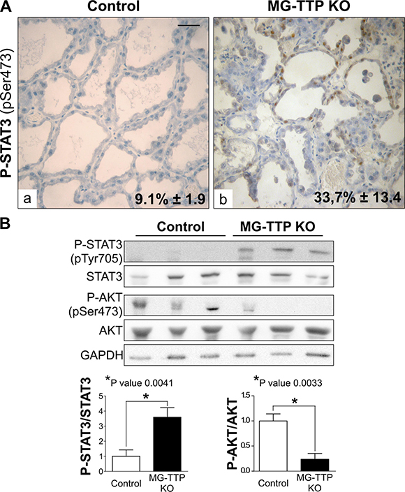 Life/Death signaling switch in 15-day lactating MG-TTP KO mice.