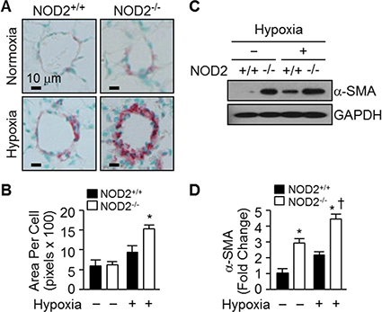 NOD2−/− mice exhibit enhanced hypertrophy of PASMCs after hypoxia.