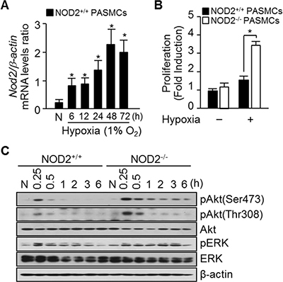Absence of NOD2 during hypoxia enhances PASMC proliferation.
