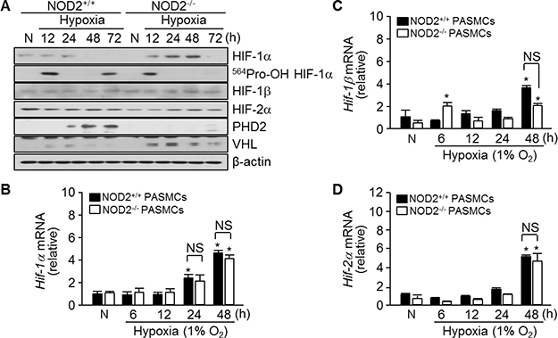 Absence of NOD2 enhances the stability of HIF-1α protein in PASMCs exposed to hypoxic conditions.