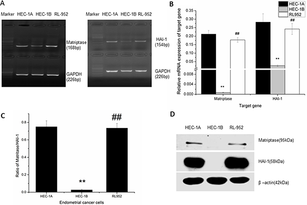 Expression of matriptase and HAI-1 in HEC-1A, HEC-1B, and RL-952 endometrial cancer cells.