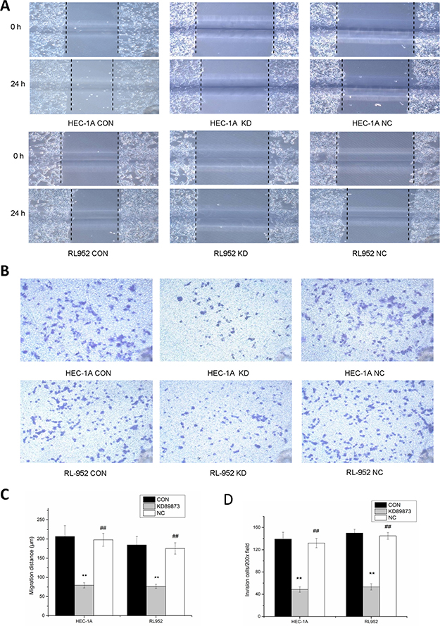 Inhibition of the migration and invasion ability of endometrial cancer cells by down-regulation of matriptase with siRNA.