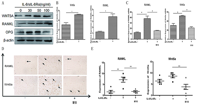 Changes in IL-6/sIL-6Rα–induced RANKL and WNT5A expression after M10 pretreatment of RA FLS.