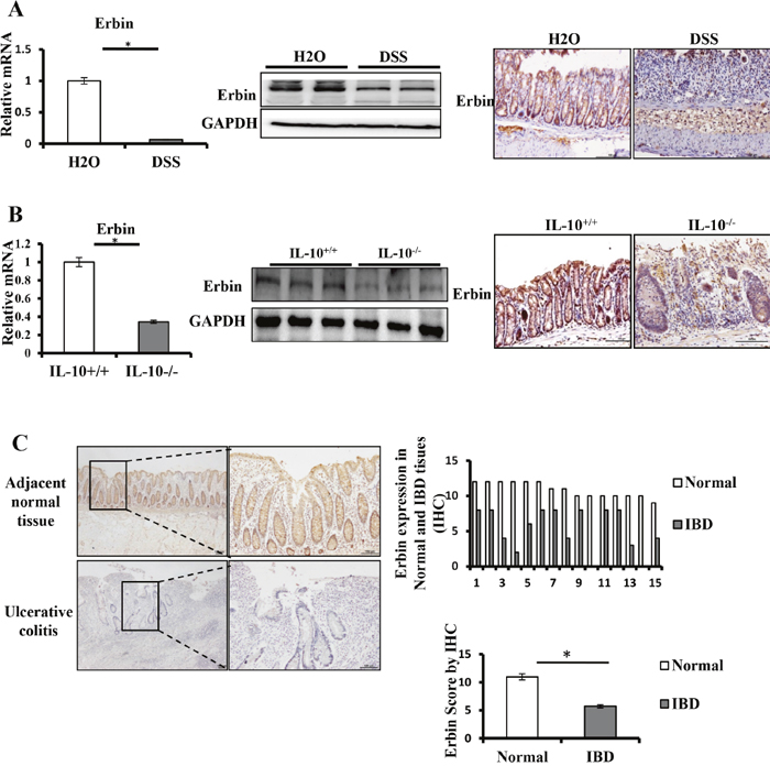 Expressions of Erbin in DSS-induced colitis model of mice and IL-10-/- mice.