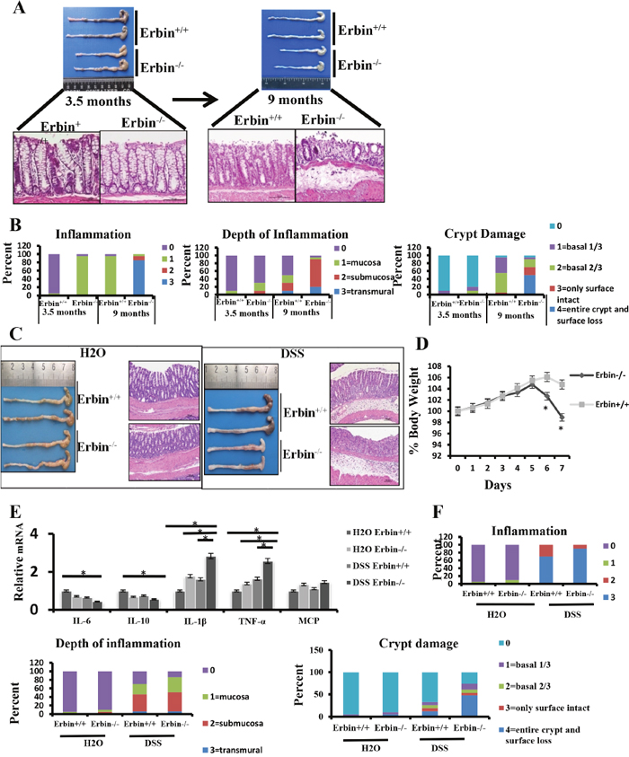 Intestinal inflammatory response and epithelial injury in experimental colitis mouse model after Erbin was deleted.