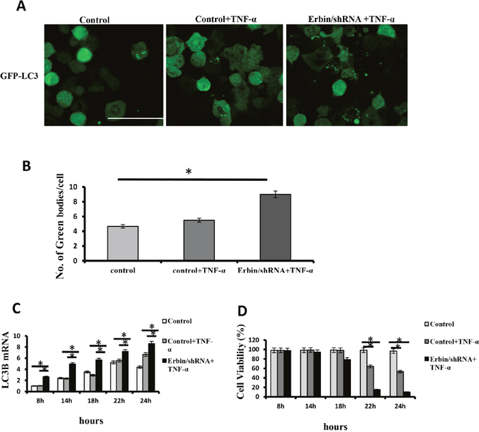 Autophagic cell death of CT26 cells after Erbin knockdown and TNF-α treatment.