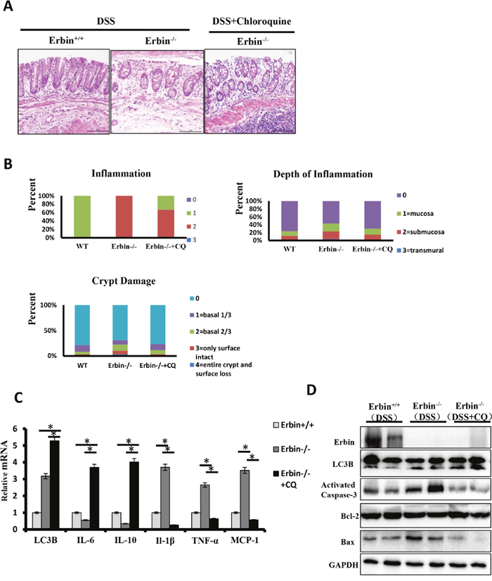 Intestinal inflammatory response and epithelial injury in the DSS-induced colitis mouse model of Erbin deletion after Chloroquine treatment.
