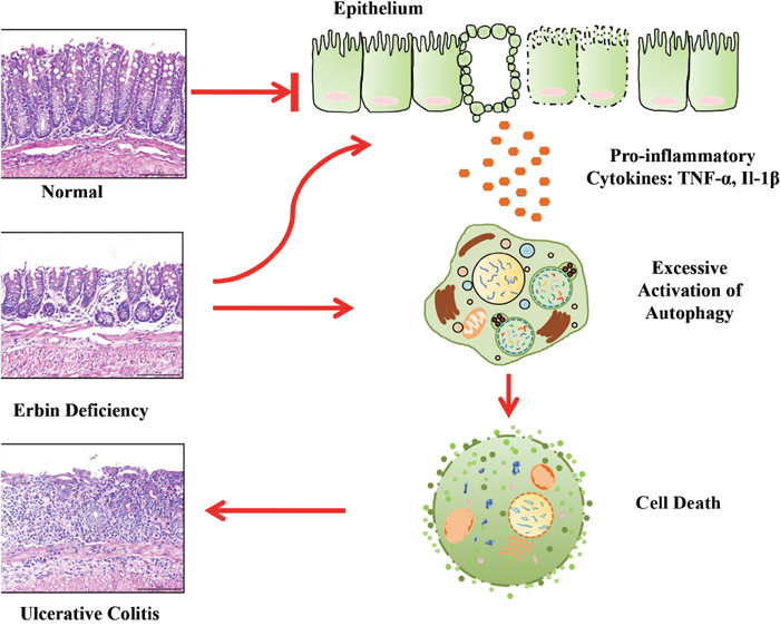 A proposed model for a novel role of Erbin in IBD and colonic homeostasis.