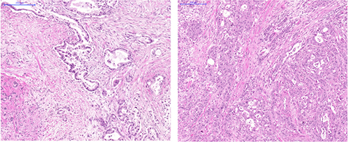 Histology images of FFPE slides from two representative cases.