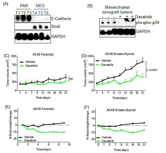 Dasatinib retards the growth of A549 mesenchymal tumor cells