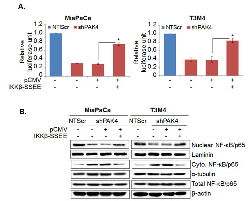 NF-κB-mediates PAK4-induced proliferation and apoptosis resistance in pancreatic cancer cells.