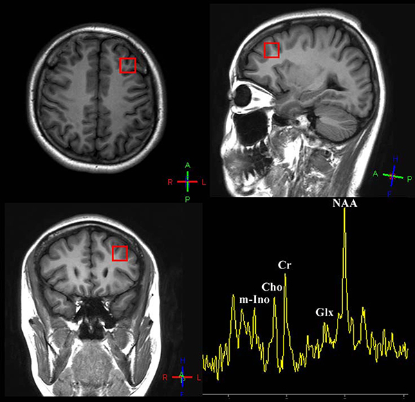 Voxel placement of interest: dorsolateral prefrontal cortex and a sample of quantifying 1H-spectrum acquired from DLPFC of patients/healthy people.