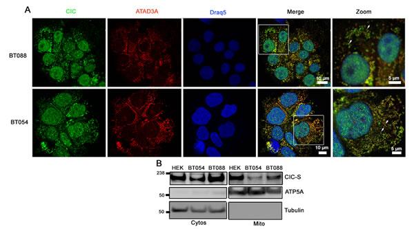 CIC-S localizes to mitochondria in 1p19q co-deleted oligodendroglioma cell lines.