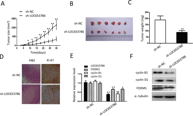 Knockdown of LOC653786 represses RCC xenograft growth and FOXM1 expression in vivo.