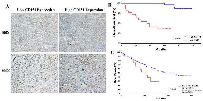 Human RCC TMAs were used to assess the relationship between CD151 and clinicopathologic characteristics of RCC patients.