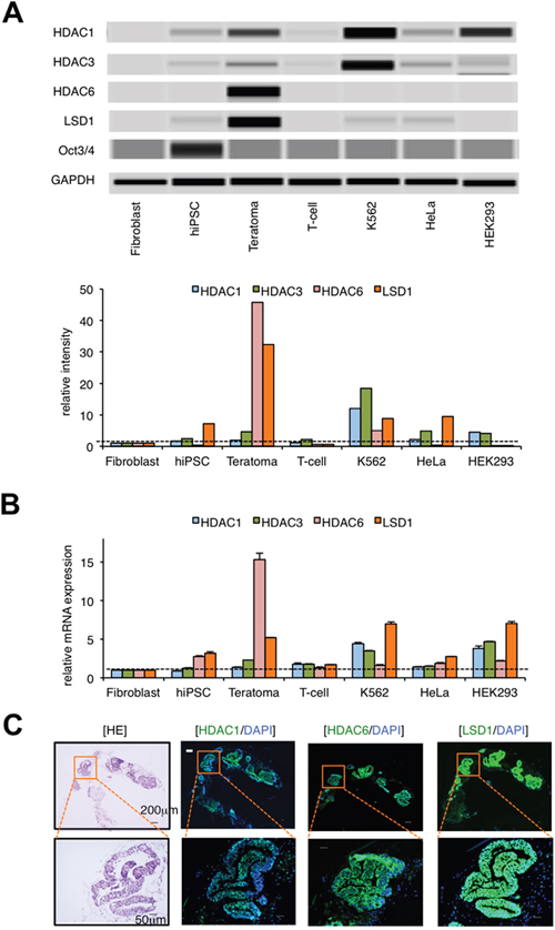 LSD1 is minimally expressed in hiPSCs but strongly expressed in hiPSC-derived teratoma.