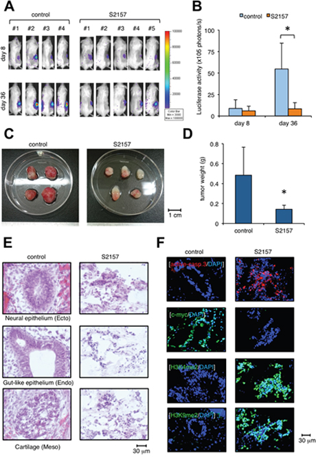 Administration of the LSD1 inhibitor S2157 prevents teratoma formation from hiPSCs.