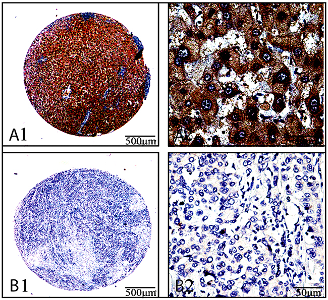 Ang-2 expression and cellular distribution by immunohistochemistryAng-2 expression in the cancerous-and their paracancerous-tissues of 122 patients with lung cancers were analyzed by immunohistochemistry with anti-human Ang-2 antibody (ab155106, Abcam, USA).