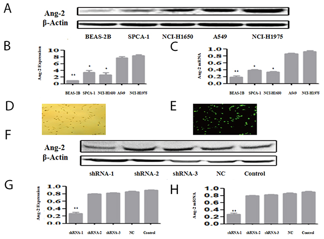 Ang-2 expression, gene transcription and shRNA suppression Ang-2 expression and gene transcription in lung Beas-2B cell, lung cancer (SPC-A-1, NCI-1650, A549, and NCI-1975) cell lines were analyzed at protein- by Western blotting or at mRNA-level by qRT-PCR.