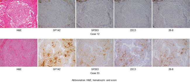 A hematoxylin and eosin-stained specimen and the representative PD-L1 expression in thymic carcinoma (magnification, ×200), as determined by the four assays (SP142, SP263, 22C3, and 28-8).
