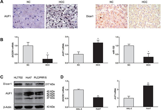 The expression of AUF1 and Dicer1 in HCC tissues and cell lines.