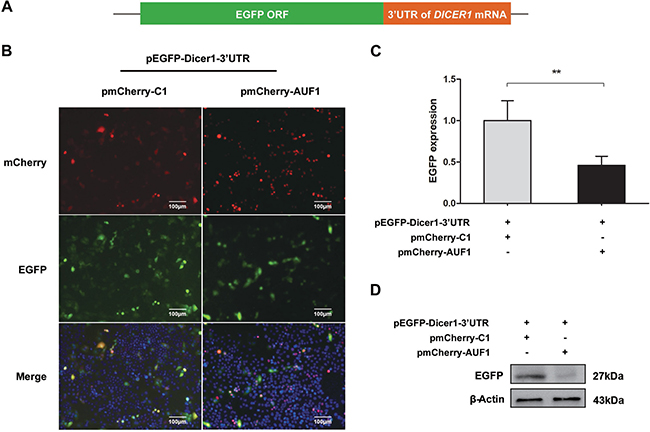 AUF1 interacts with the 3′UTR of DICER1 mRNA and regulates its expression.