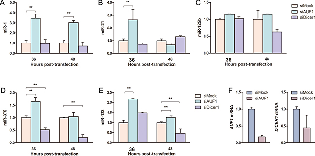 AUF1 affects oncogenic miRNA expression in hepatocellular carcinoma cells.