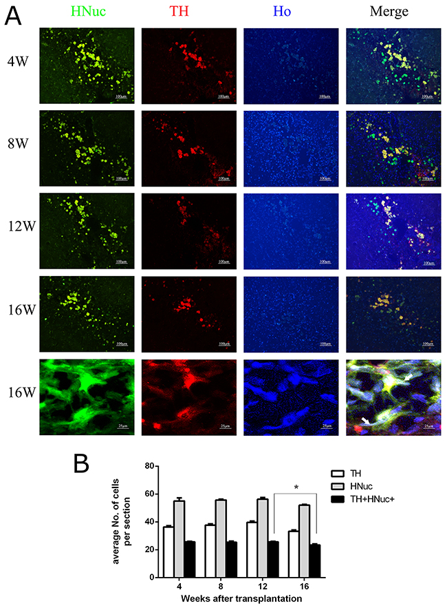 The persistent in vivo survival of DA neurons from transplanted hUC-MSCs.