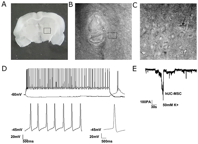 The electrophysiological recordings of differentiated neurons from grafted hUC-MSCs in a 6-OHDA lesioned rat.