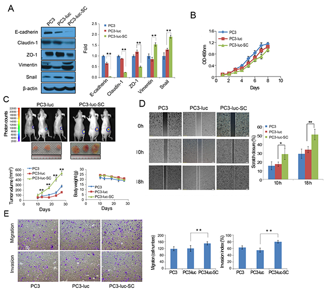 PC3-luc cells form an orthotopic primary prostate tumor in